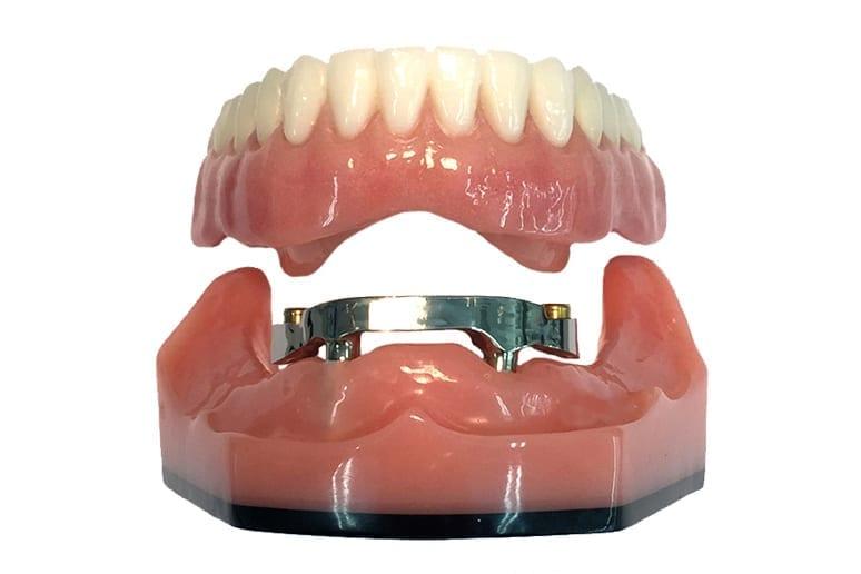 Балочные зубные протезы