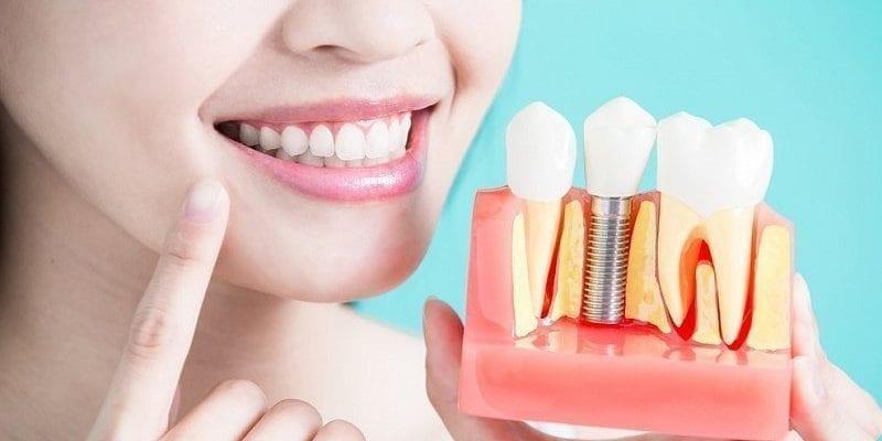 Имплантация зубов Москва