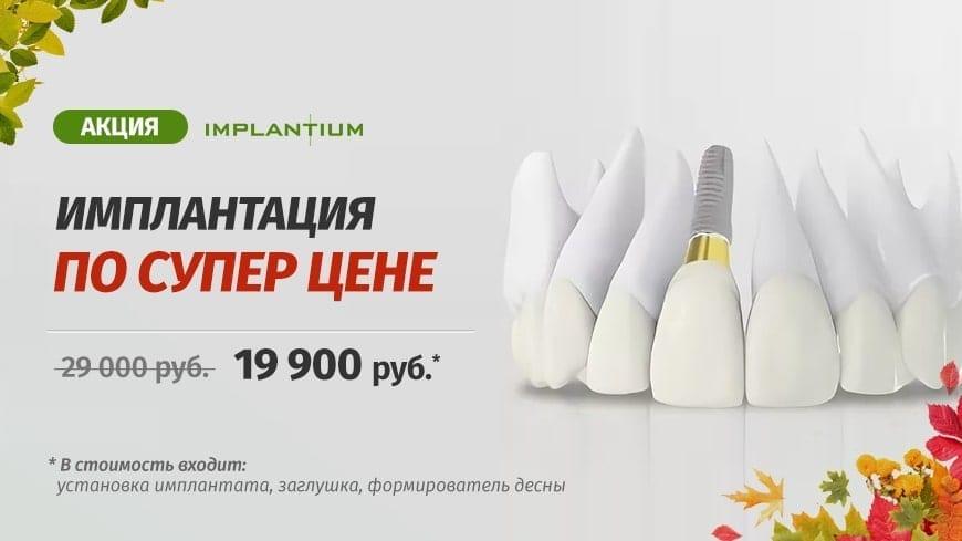 Скидка на имплантацию зубов