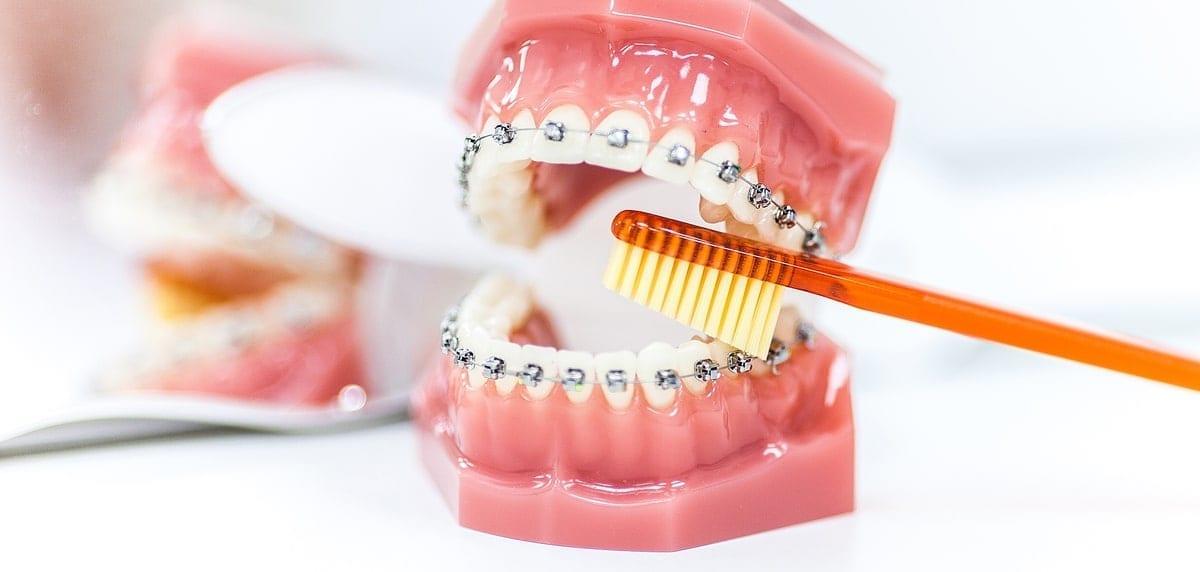 установка брекетов в стомаологии