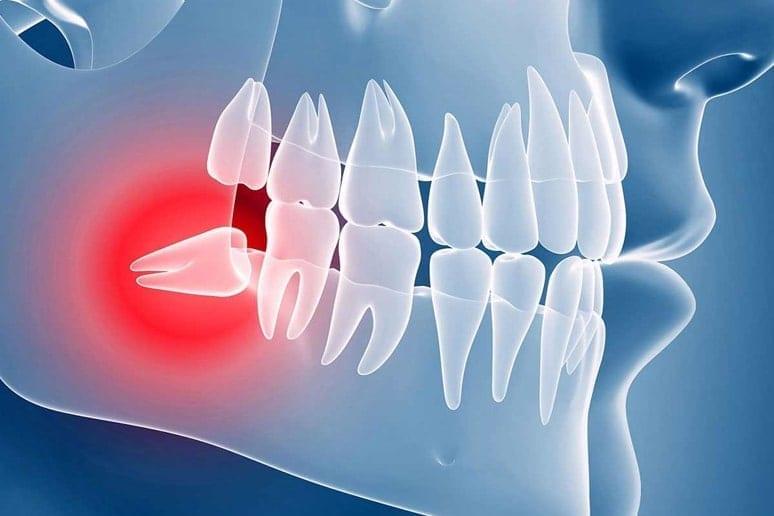 Лечение ретинированных зубов