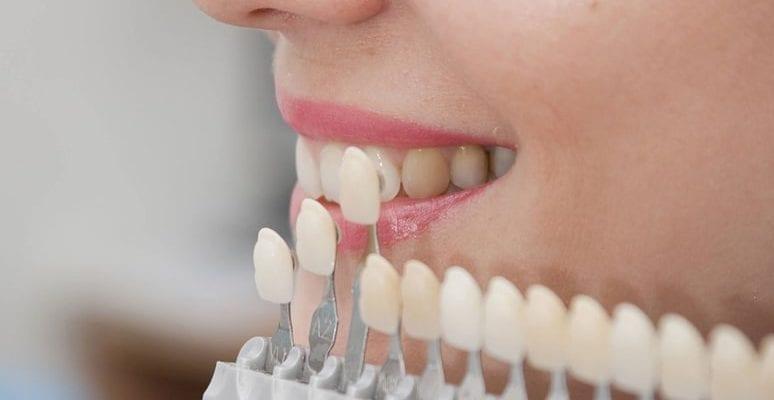 Материалы для эстетической реставрации зубов