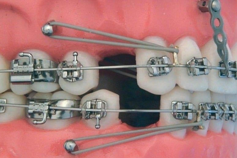 Ортодонтические микроимпланты