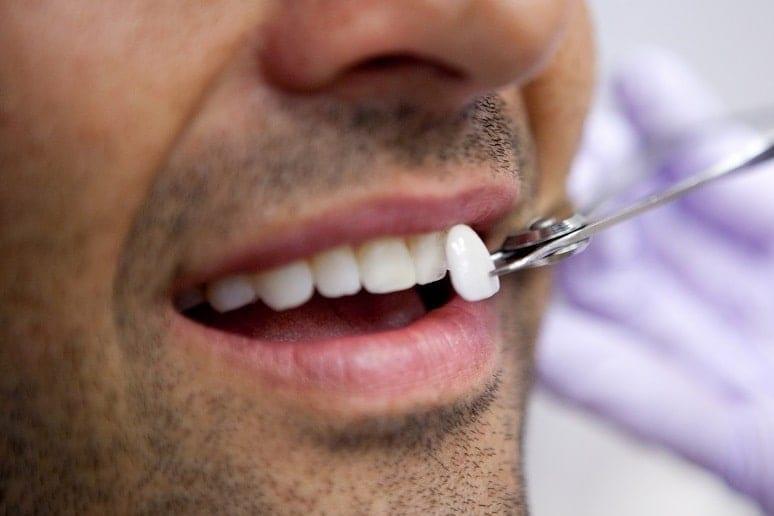 Эстетическая реставрация зубов композитными материалами и винирами