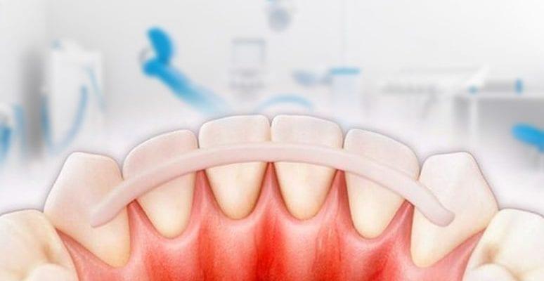 шина для зубов