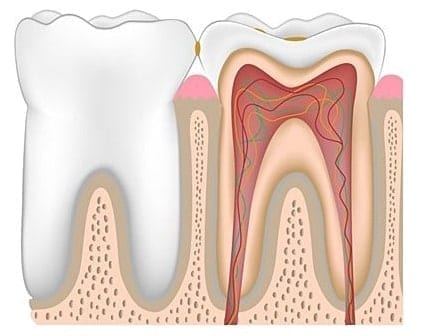 Здоровый зуб с зубным налетом
